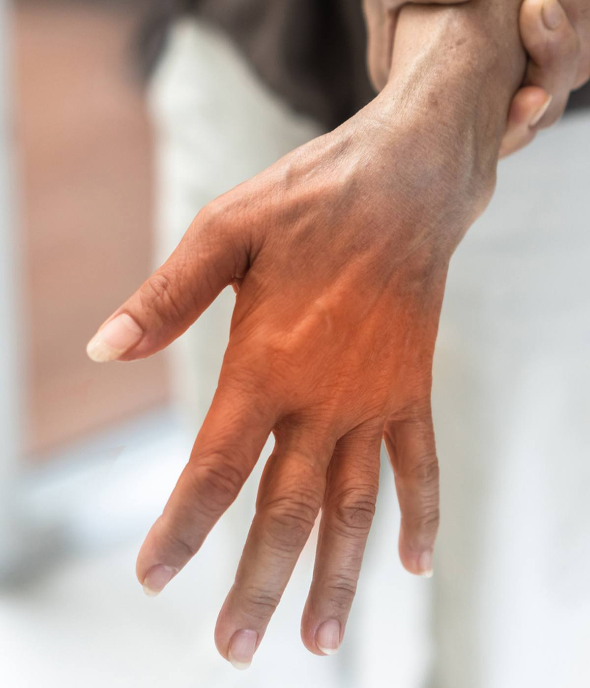 Nerve Damage Pain in Hand