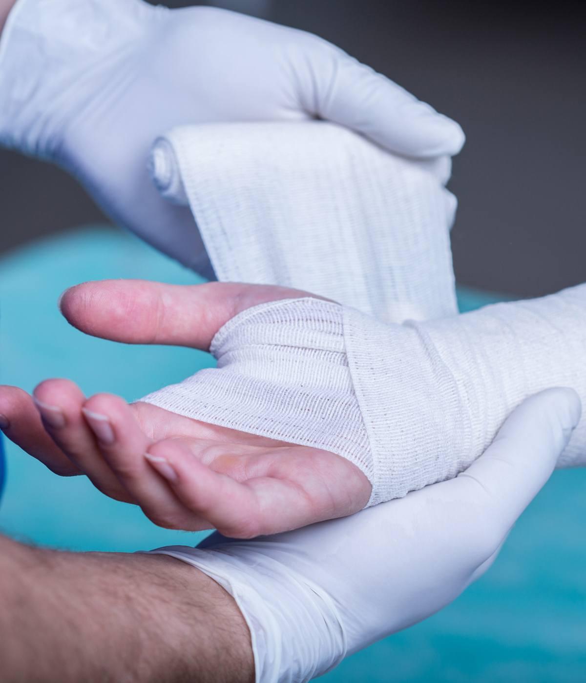 Doctor Bandaging Wrist Fracture